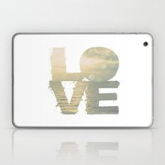 This Love Is Ours Laptop & iPad Skin