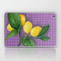 Lemonade Laptop & iPad Skin