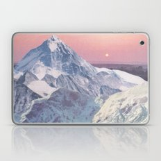 Comfort Laptop & iPad Skin