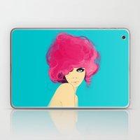 Fluro Laptop & iPad Skin