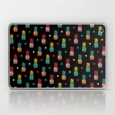 Pineapples! Laptop & iPad Skin
