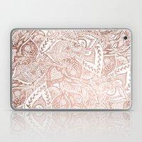 Chic Hand Drawn Rose Gol… Laptop & iPad Skin