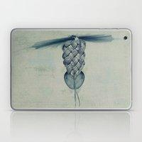 Tighten up! Laptop & iPad Skin