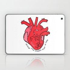 Scarred Heart Laptop & iPad Skin
