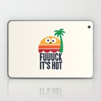 Heated Rhetoric Laptop & iPad Skin