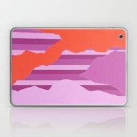 What Laptop & iPad Skin