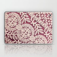 lace on red Laptop & iPad Skin