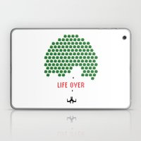 Life Over Laptop & iPad Skin