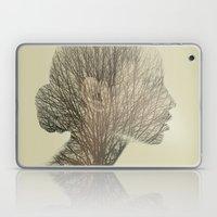 Rhinoplantsy Laptop & iPad Skin