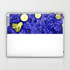 Symphony of Night Laptop & iPad Skin