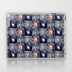 Lover's Locks 1: Will You Marry Me, She Said Yes Laptop & iPad Skin