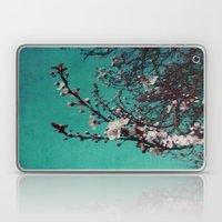 Cherry Blue Laptop & iPad Skin