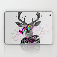 WWWW Laptop & iPad Skin