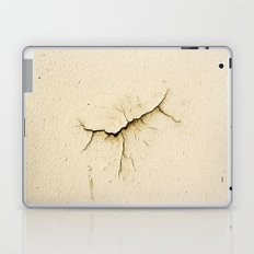 Wound Laptop & iPad Skin
