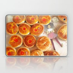 Coconut Tart Laptop & iPad Skin