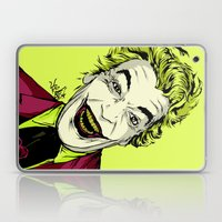 Joker On You 2 Laptop & iPad Skin