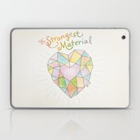 The Strongest Material Laptop & iPad Skin