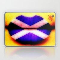 SCOTTISH KISS - 055 Laptop & iPad Skin