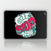 Can't Stop Now! Laptop & iPad Skin