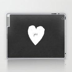 yes! Laptop & iPad Skin