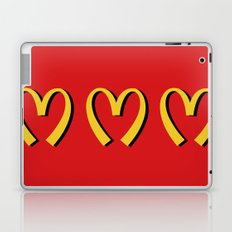 McDonald's MOSCHINO Laptop & iPad Skin
