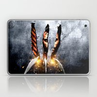 The Weapon XFactor Laptop & iPad Skin