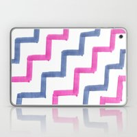 Missoni Stairs Laptop & iPad Skin