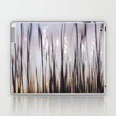 Lightplay Laptop & iPad Skin