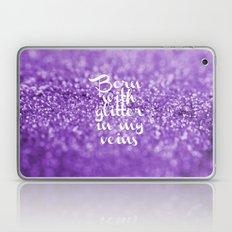 Glitter in my Veins III (Photo of Glitter) Laptop & iPad Skin