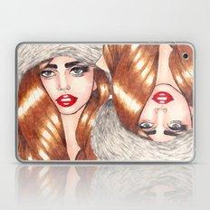 Furr Queen Laptop & iPad Skin
