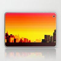 TY Laptop & iPad Skin