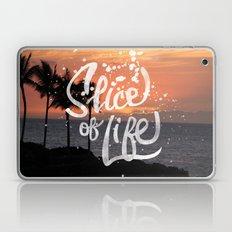 Slice of Life Laptop & iPad Skin