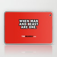 WHEN MAN AND BEST ARE ON… Laptop & iPad Skin