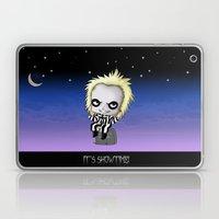 It's Showtime! Laptop & iPad Skin