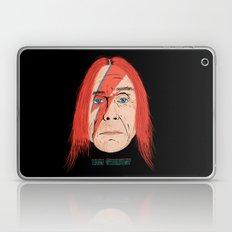Iggy Stardust Laptop & iPad Skin