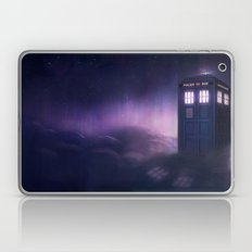Where do you want to start? Laptop & iPad Skin