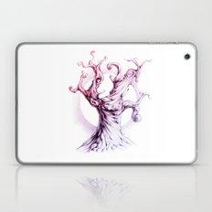 MusicTree Laptop & iPad Skin