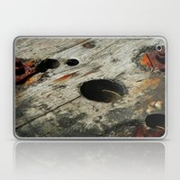 Square Pegs Laptop & iPad Skin
