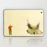 Man Listening A Car Burn… Laptop & iPad Skin