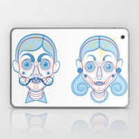 A Rare Girl Laptop & iPad Skin