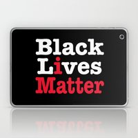 BLACK LIVES MATTER (inverse version) Laptop & iPad Skin
