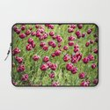 Tulips will remember  Laptop Sleeve