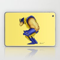 What a Mugg Laptop & iPad Skin