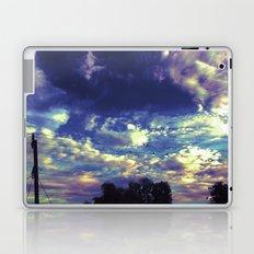 Closed Eye Sheet Music Laptop & iPad Skin