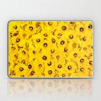 Daffodils En-masse Laptop & iPad Skin