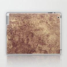 Luxury Laptop & iPad Skin