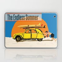An Endless Summer Bummer Laptop & iPad Skin
