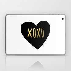 XOXO x Gold Laptop & iPad Skin