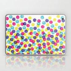 Surprise! Laptop & iPad Skin