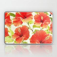 FLORAL PATTERN - HIBISCUS - Laptop & iPad Skin